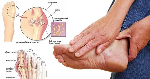 chua benh gout